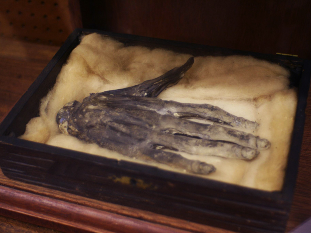 Hand of Glory – Macabre Magic According to legend, the dried and pickled hand of a hanged man possesses sinister powers