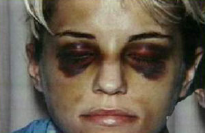 Homolka's injuries from Bernardo